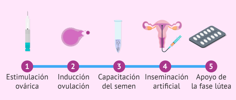 Inseminación-artificial